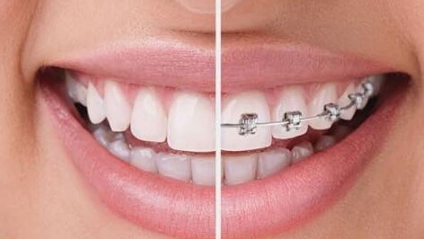 orthodontie-importance-du-traitement