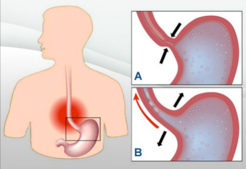 acidite-gastrique-reflux-gastro-oesophagien