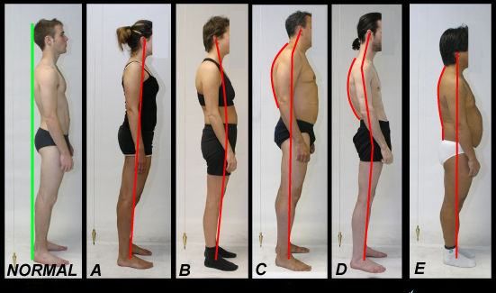 posture-osteopathie