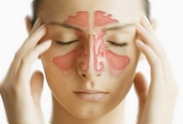sinusite-maxillaire-symptomes
