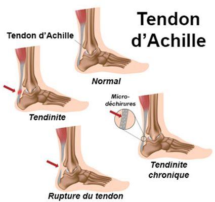 tendinite-tendon-dachille